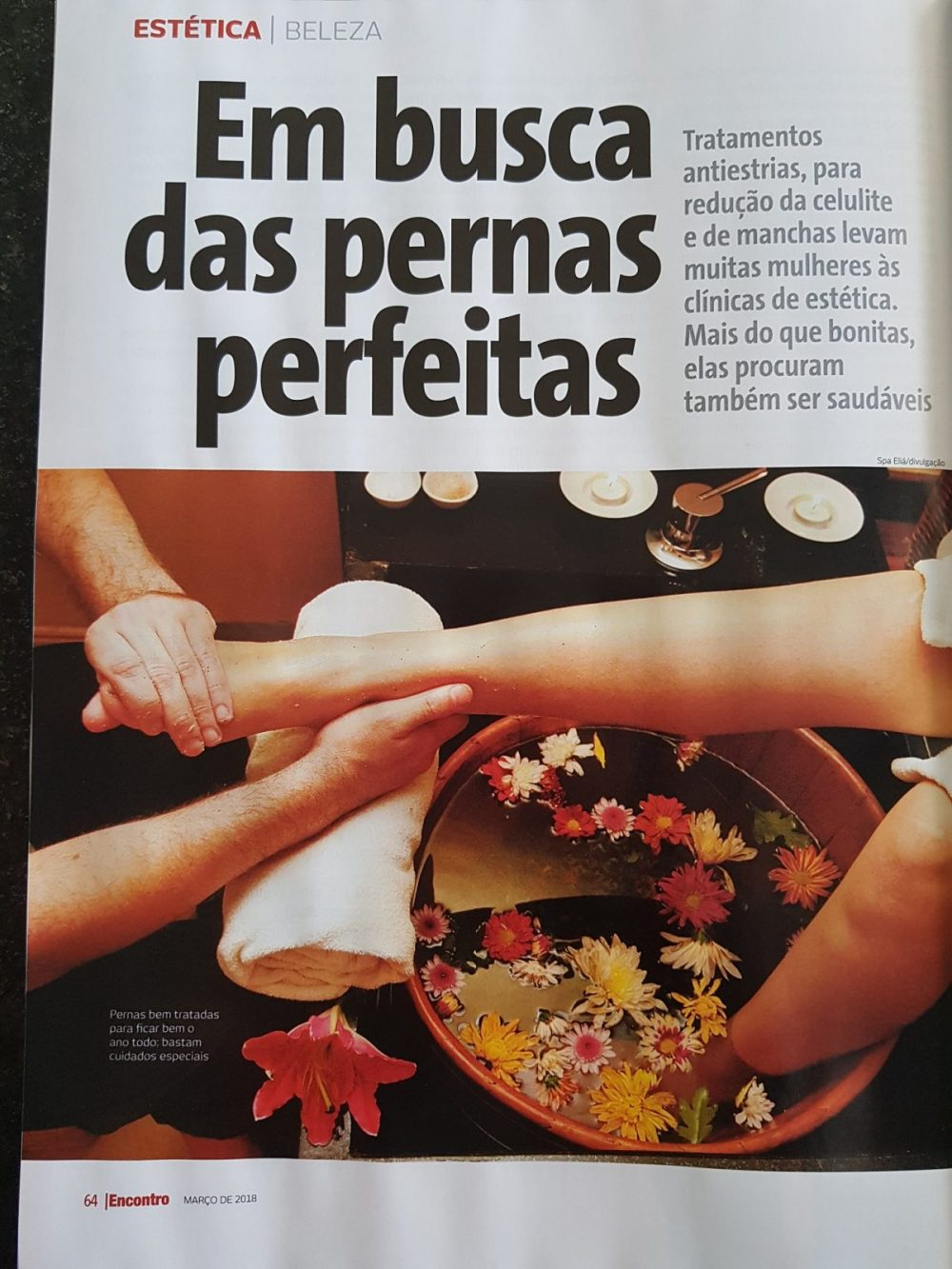 Revista Encontro - matéria sobre tratamentos para pernas - Clínica Dermatologia Brasília Ricardo Fenelon